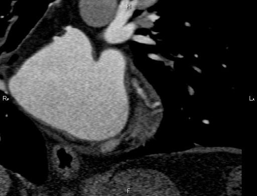Дивертикул левого предсердия (left atrial diverticulum)