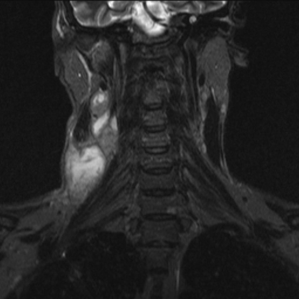 Туберкулезный шейный лимфаденит (Tuberculous cervical lymphadenitis)