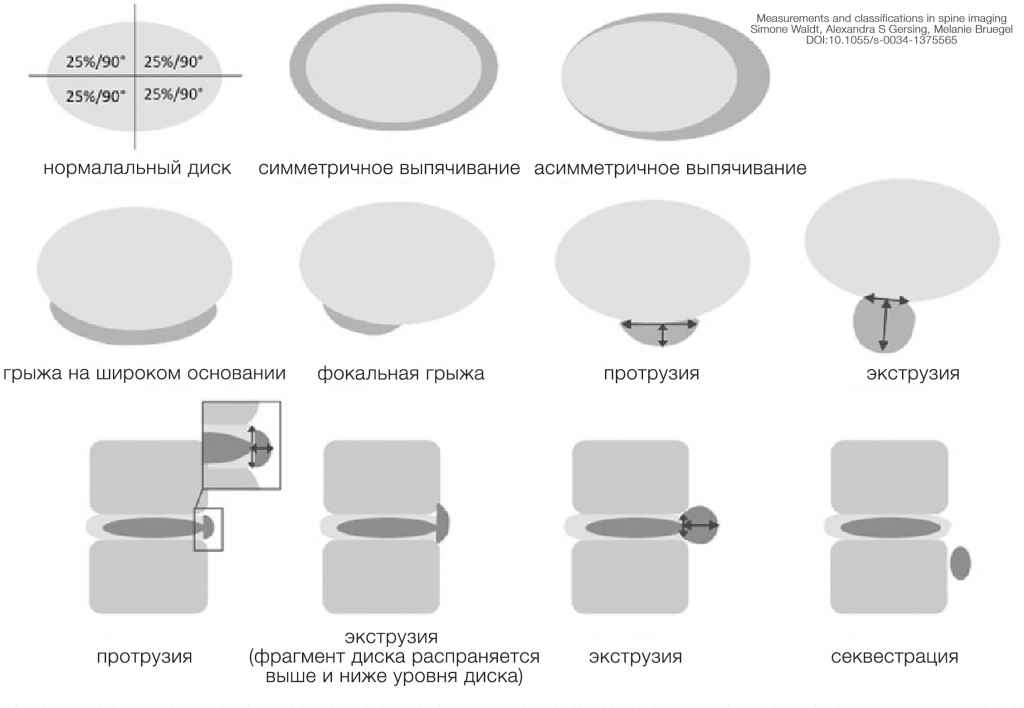 Номенклатура патологий межпозвонковых дисков 2.0