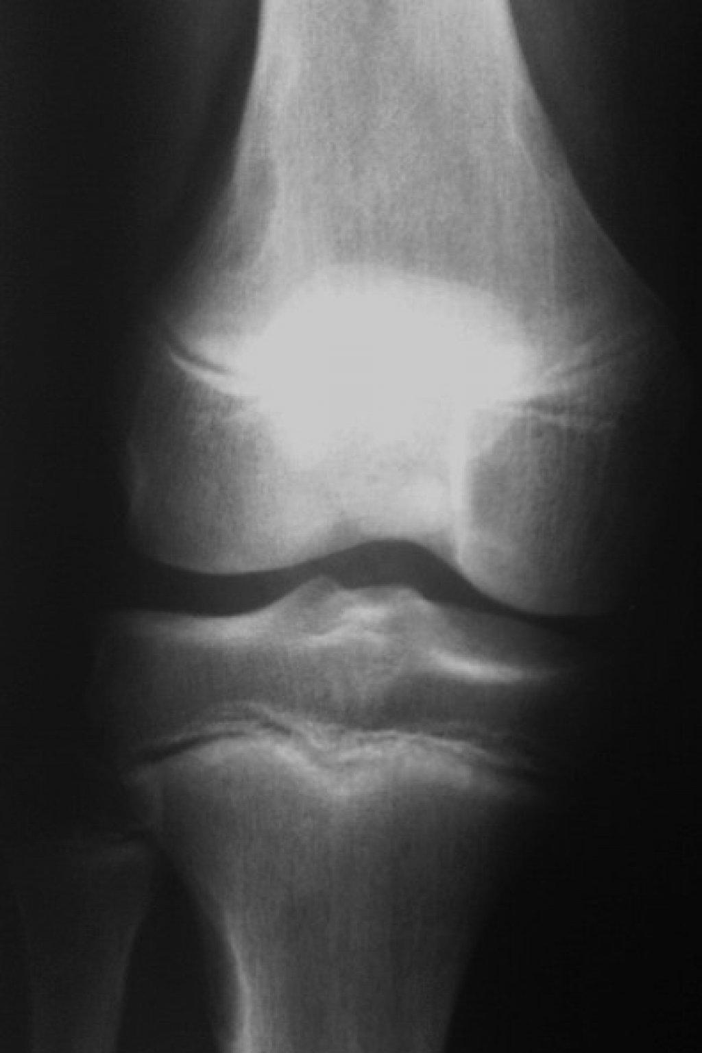 Фиброзный кортикальный дефект (Неоссифицирующая фиброма)