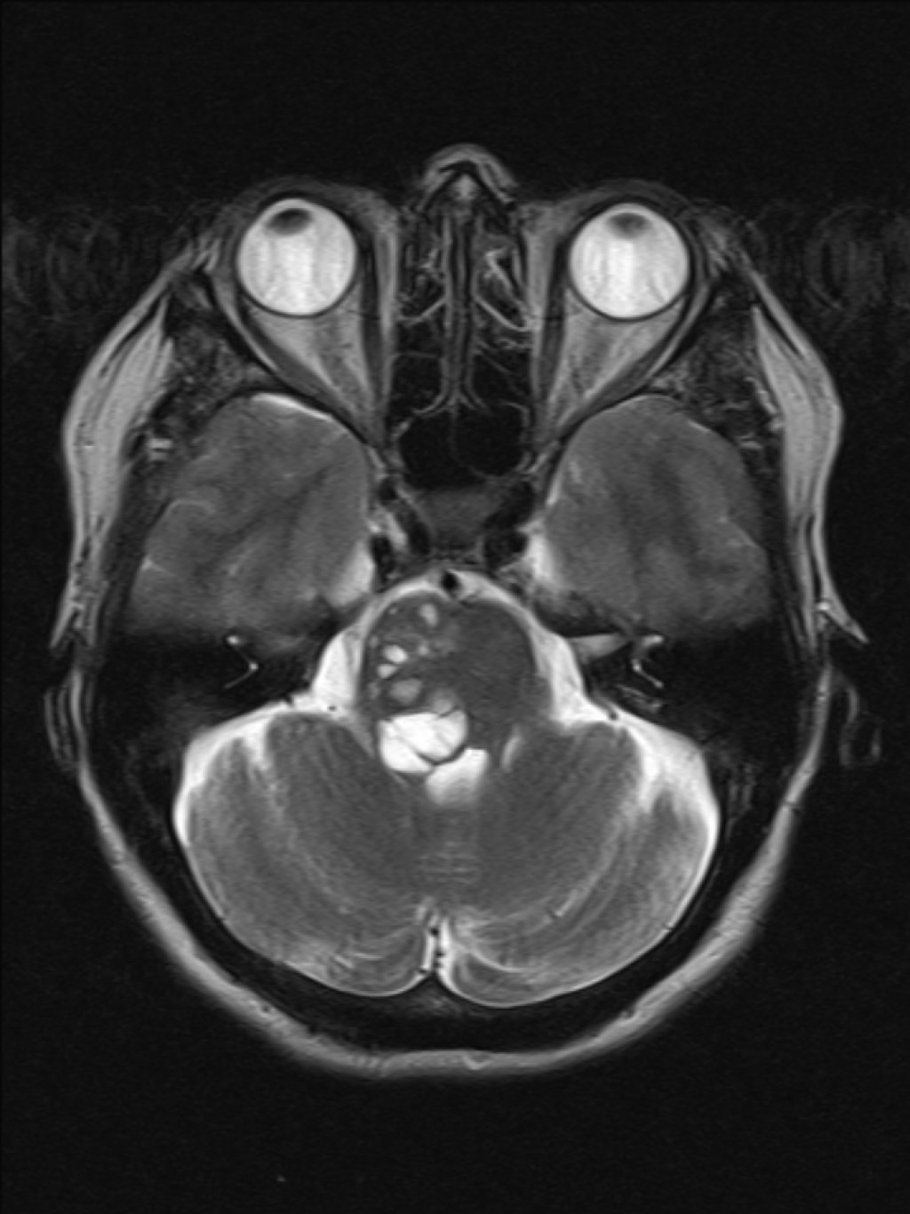 Гигантские расширенные периваскулярные пространства, вызывающие внутреннюю окклюзионную гидроцефалию (Giant dilated perivascular spaces causing obstructive hydrocephalus).