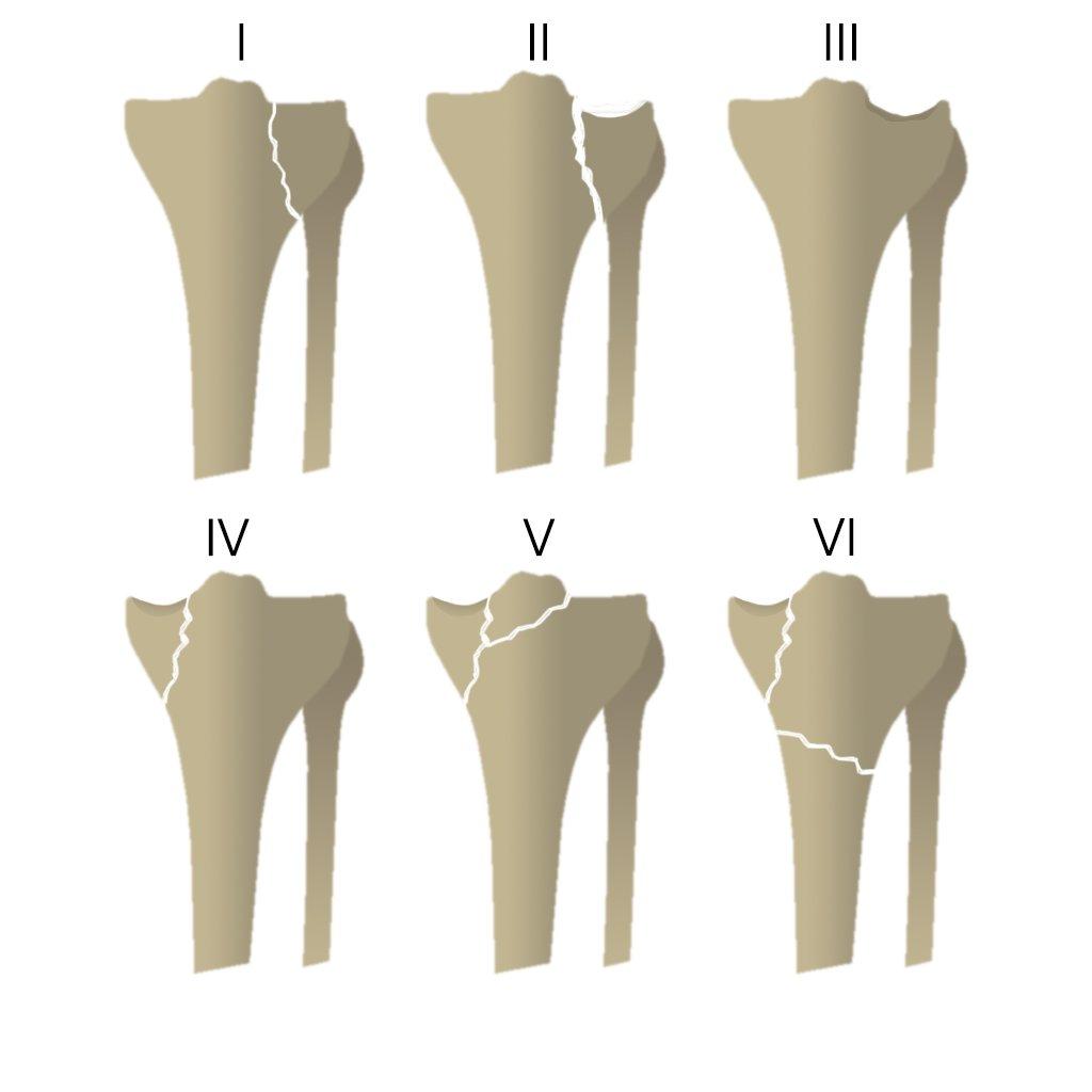 Переломы плато большеберцовой кости (классификация по Шацкеру)