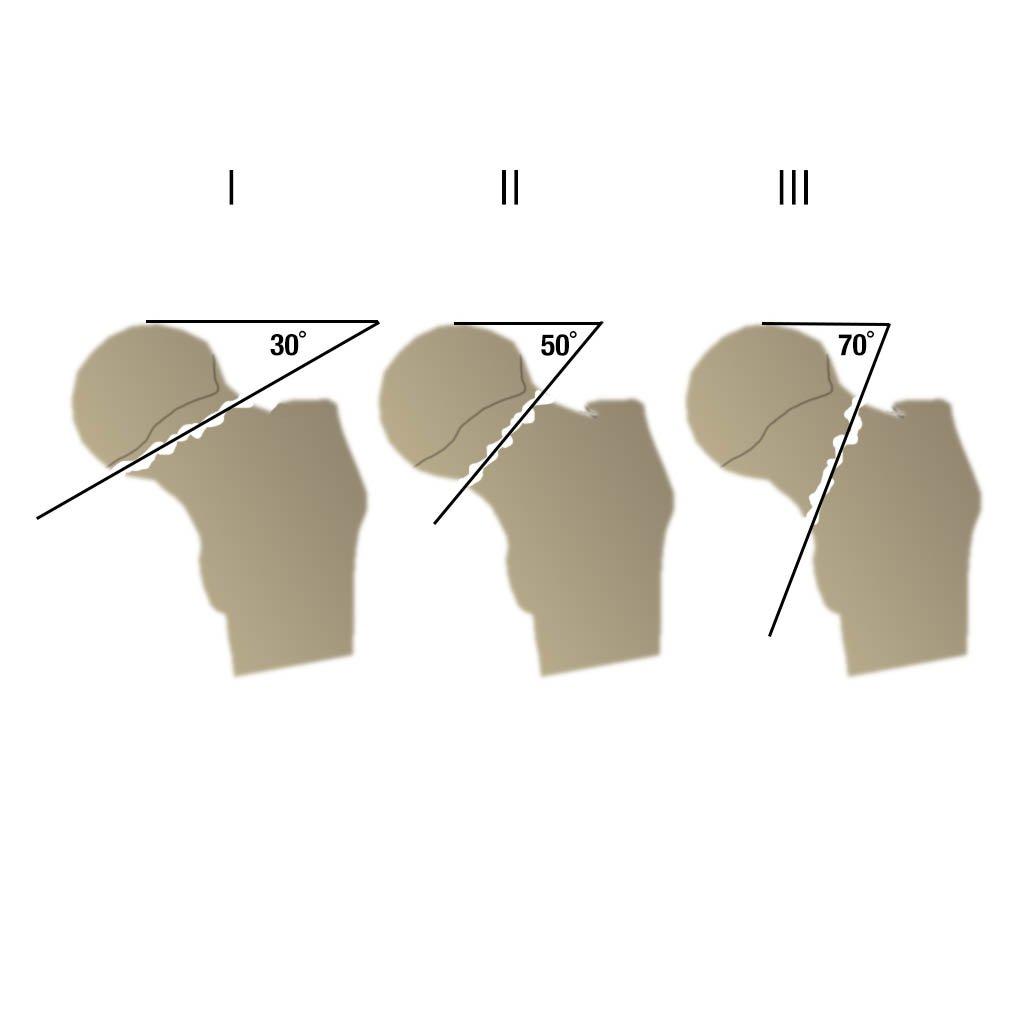 Перелом шейки бедренной кости (Иллюстрации)