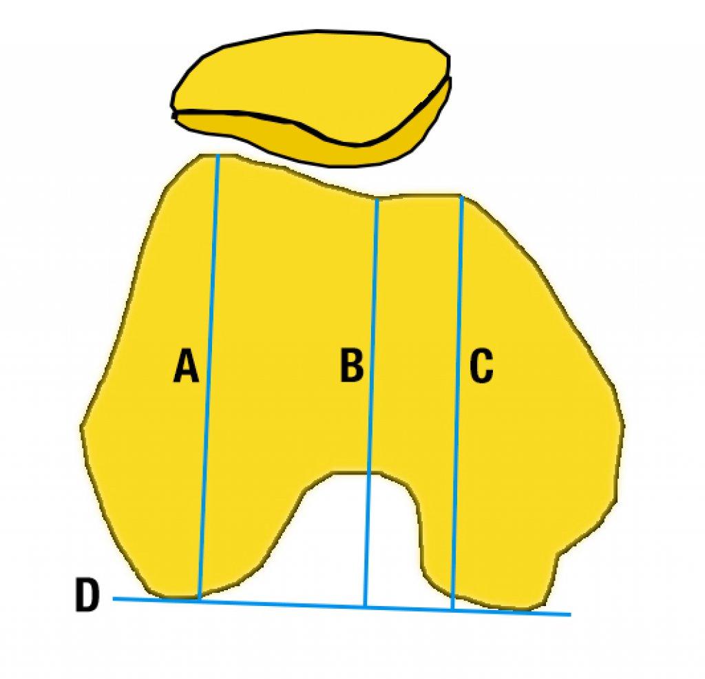 Глубина блока бедренной кости