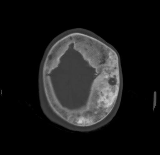 Болезнь Педжета - симптомы, причины и лечение