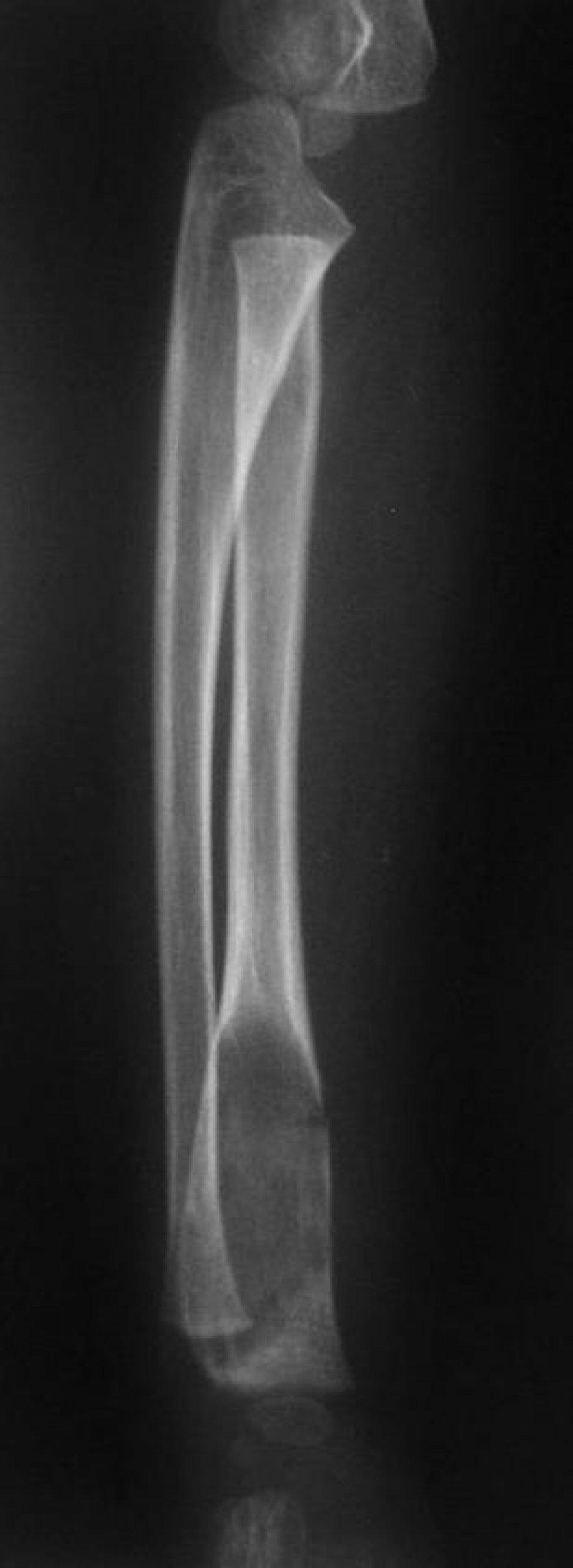 Хондрома лучевой кости