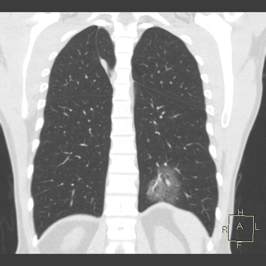 COVID-19 пневмония