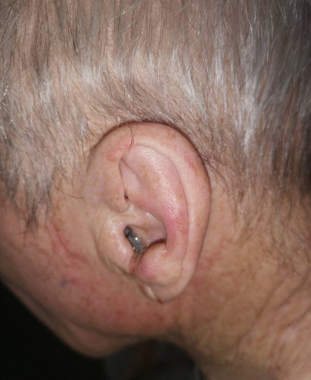 Кожная меланома наружного слухового прохода