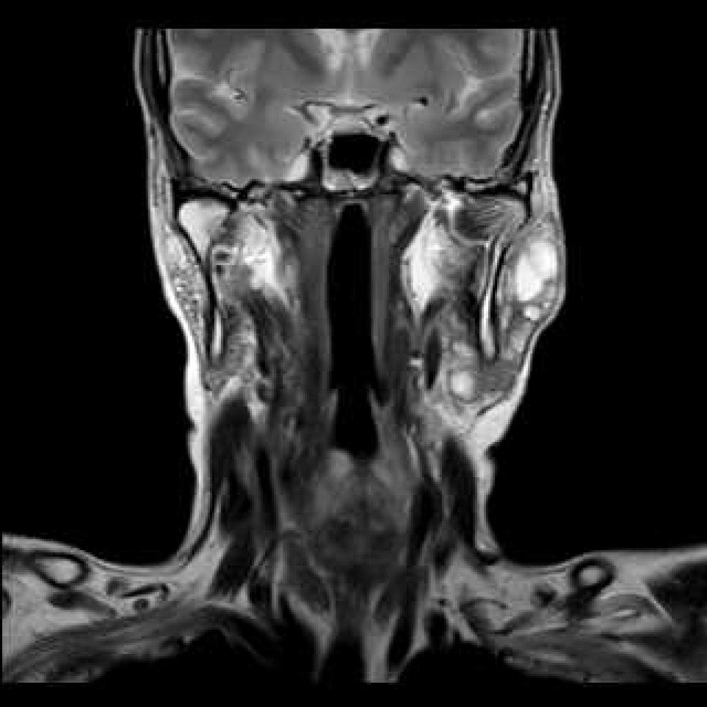 Поражение слюнных желез при синдроме Шегрена