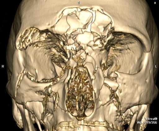 Множественные оскольчатые переломы лицевого скелета с переходом на основание черепа