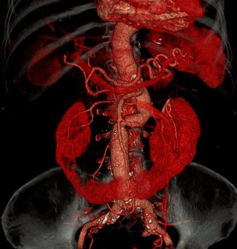 Разрыв аневризмы брюшной аорты с забрюшинной гематомой, подковообразная почка.