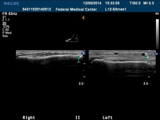 Перелом II плюсневой кости