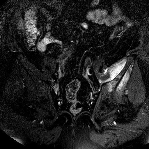 Костные метастазы при колоректальном раке