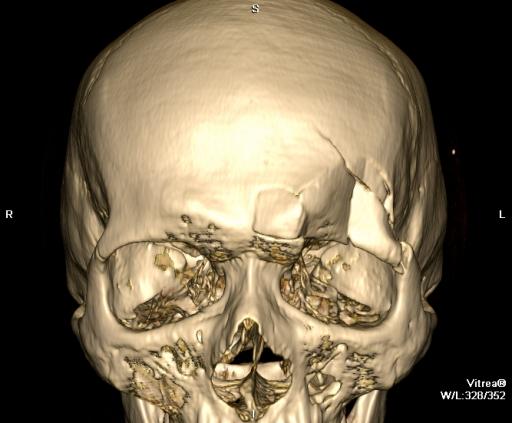 Оскольчатый перелом стенок лобной пазухи, проптоз