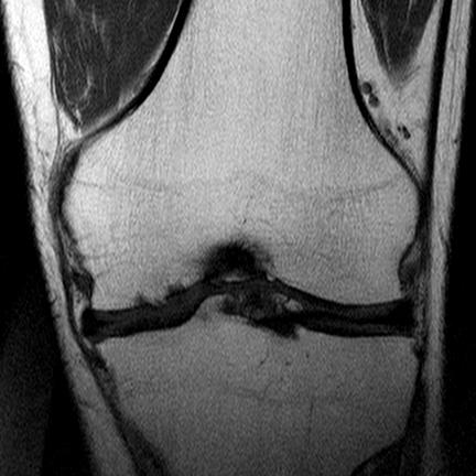 Рассекающий остеохондрит (болезнь Кёнига) IV (V) стадия