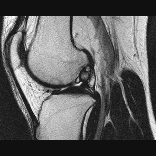 Рассекающий остеохондрит (болезнь Кёнига) III стадия