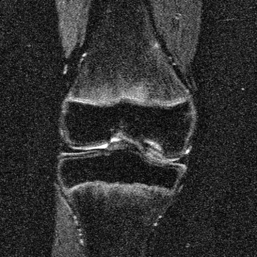 Рассекающий остеохондрит (болезнь Кёнига) IIа стадия