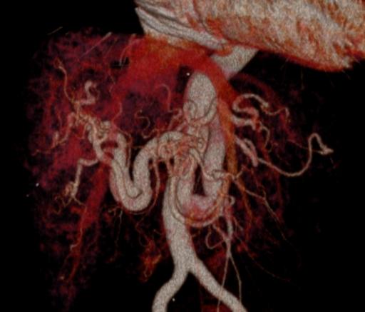 Болезнь Рандю— Ослера — Вебера, артерио-венозные шунты печени