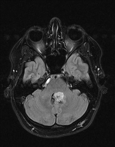 Субэпиндимома IV желудочка, вентрикулярное кровоизлияние