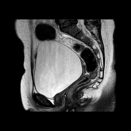 аплазия матки и верхних 2/3 влагалища