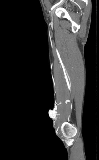 Артериовенозная мальформация бедра
