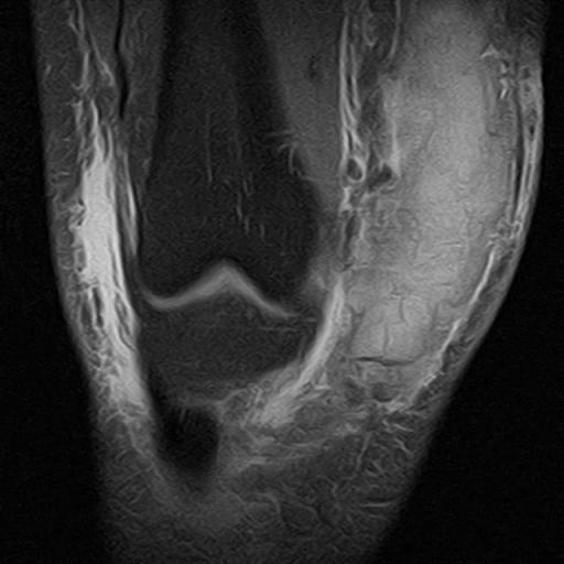 Ушиб медиального надмыщелка бедра, частичное повреждение внутренней коллатеральной связки и медиального поддерживателя надколленника