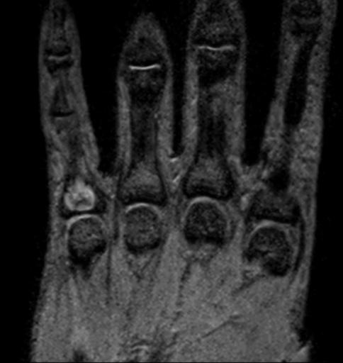 Энхондрома проксимальной фаланги V пальца правой кисти