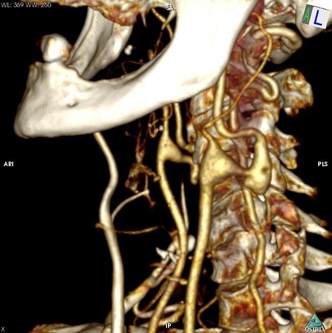 Кинкинг и аневризмы экстракраниальных сегментов внутренних сонных артерий (kinking and extracranial carotid aneurisms)