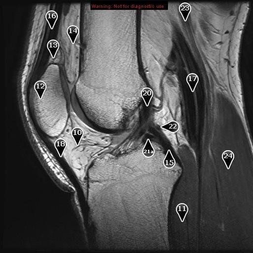 Коленный сустав (нормальная мр-анатомия в сагиттальной проекции)
