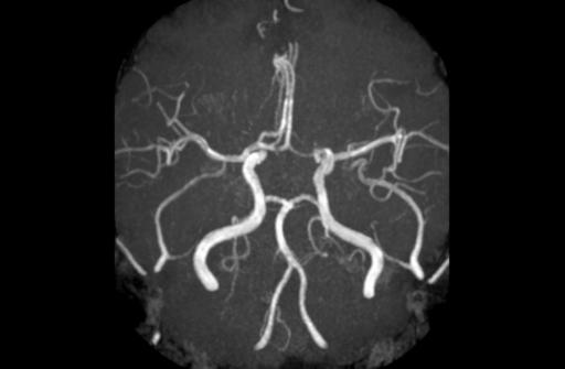 Фенестрация передней мозговой артерии