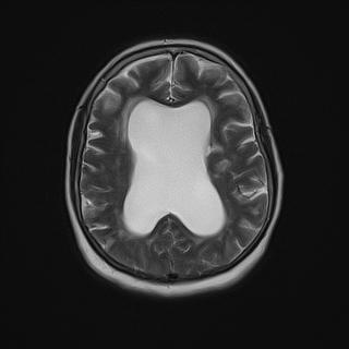 Идиопатическая нормотензивная гидроцефалия, острое нарушение мозгового кровообращения.