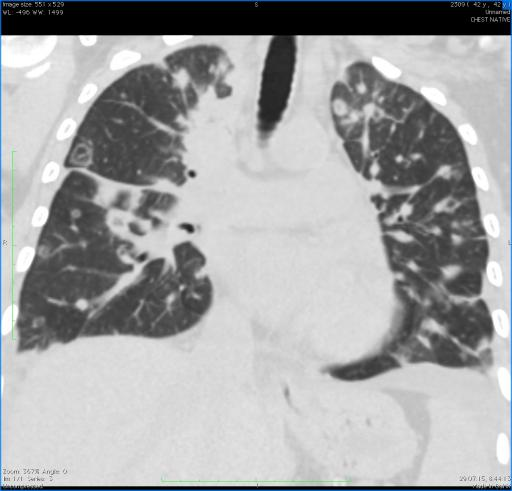 Септическая пневмония