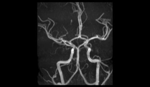 Фенестрация основной артерии