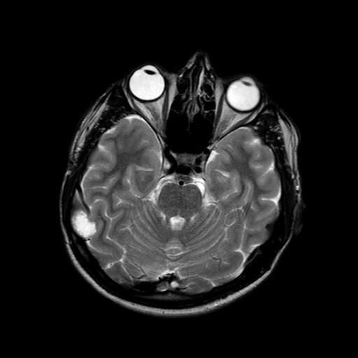 Дисэмбриопластическая нейроэпителиальная опухоль (DNET, ДНЭТ)