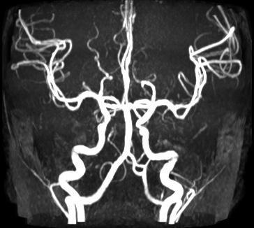 Фенестрация позвоночной артерии